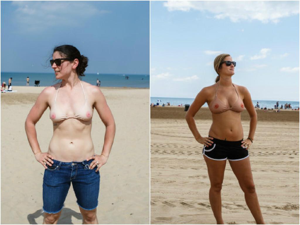 Implante de peito em quantos anos