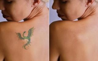 CLINICA IN - Remoção Tatuagens