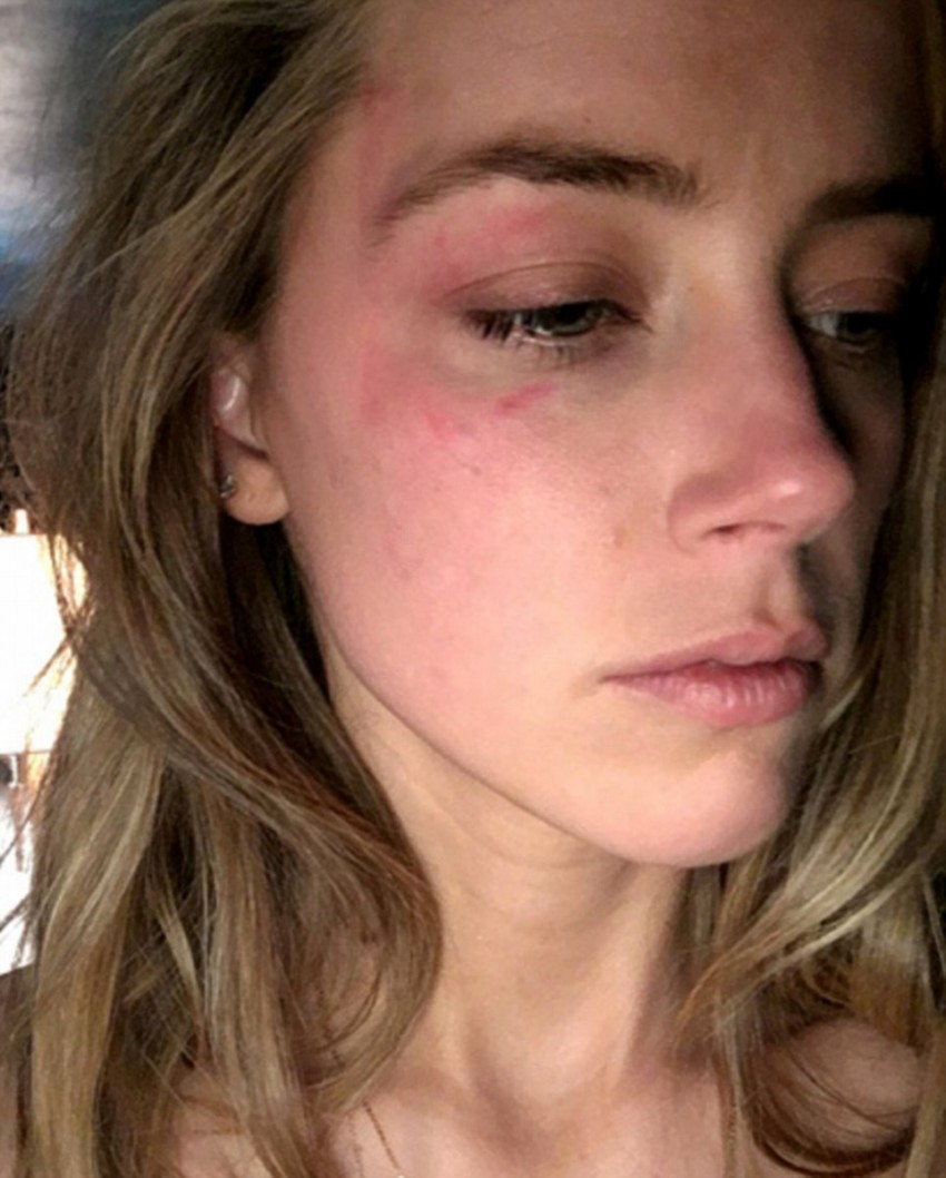 34B3A5A200000578-3613134-The_actress_submitted_a_photo_of_a_large_bruise_around_her_eye_a-a-79_1464379672313