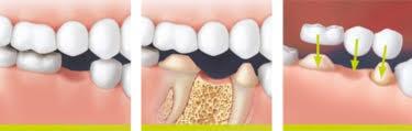Com os métodos convencionais, os dois dentes vizinhos têm de ser desgastados para fixar a ponte no lugar.