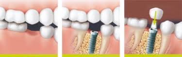 O implante dentário substitui a raiz do dente ausente. Os dentes vizinhos saudáveis permanecem completamente intactos e não são desgastados.