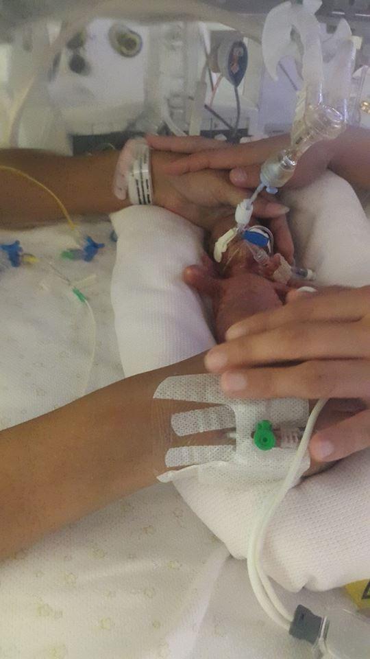 Margarida nasceu prematura no Dubai mas não resistiu