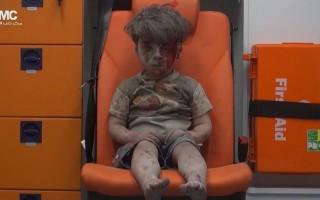 Omran Daqneesh menino Síria vídeo viral 2