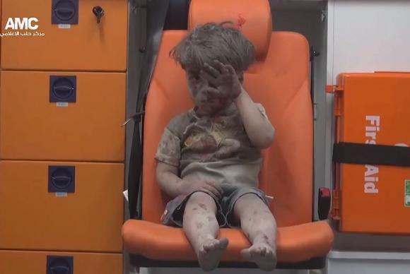 Omran Daqneesh menino Síria vídeo viral