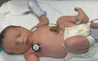 lynlee-boemer-bebe-que-nasceu-duas-vezes