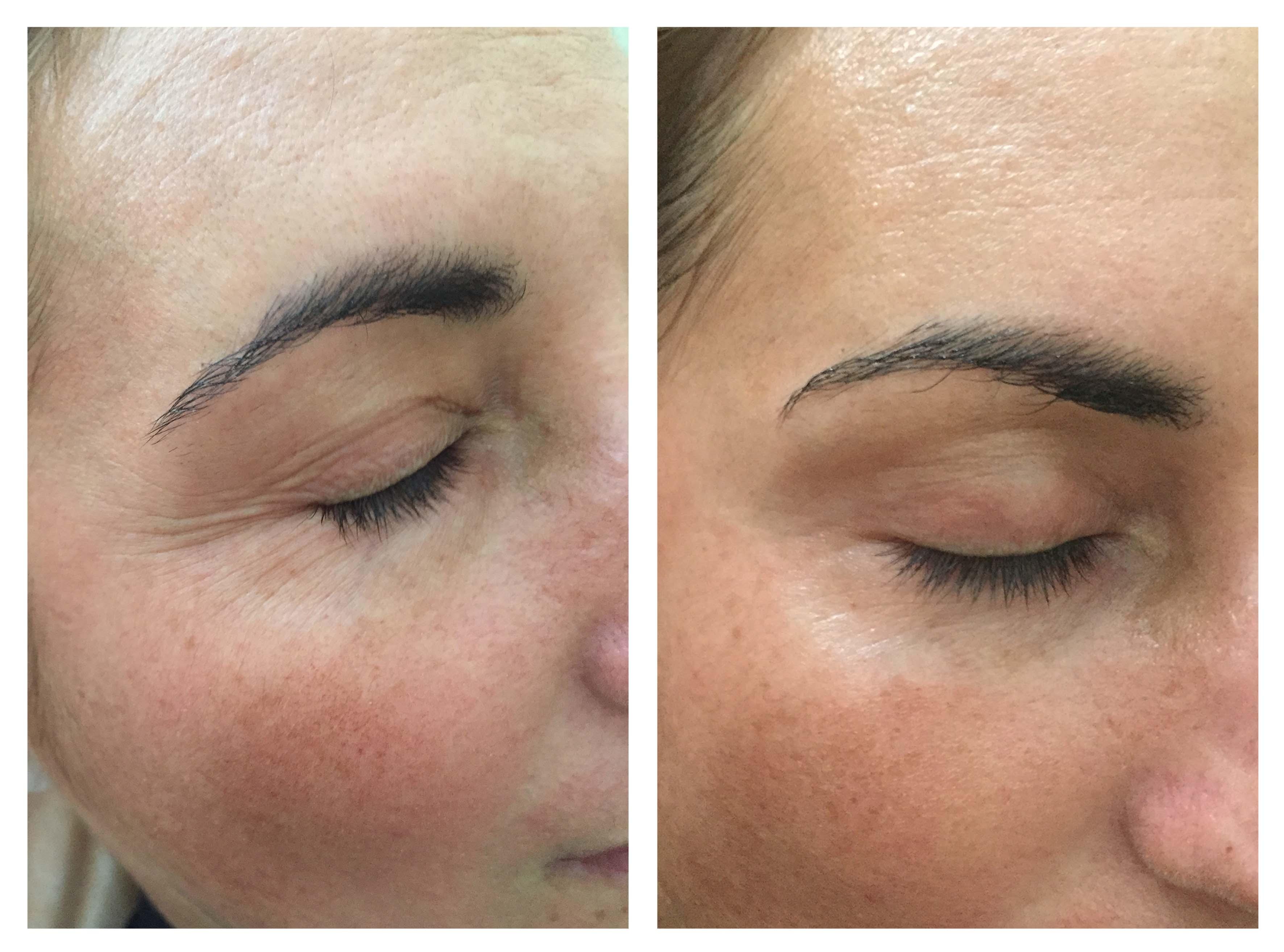 Antes e Depois do tratamento CooLifting