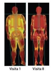 Avaliação da composição corporal de um paciente que completou o tratamento PronoKal, medida por DEXA (Absorção de Raios X de Dupla Emissão)