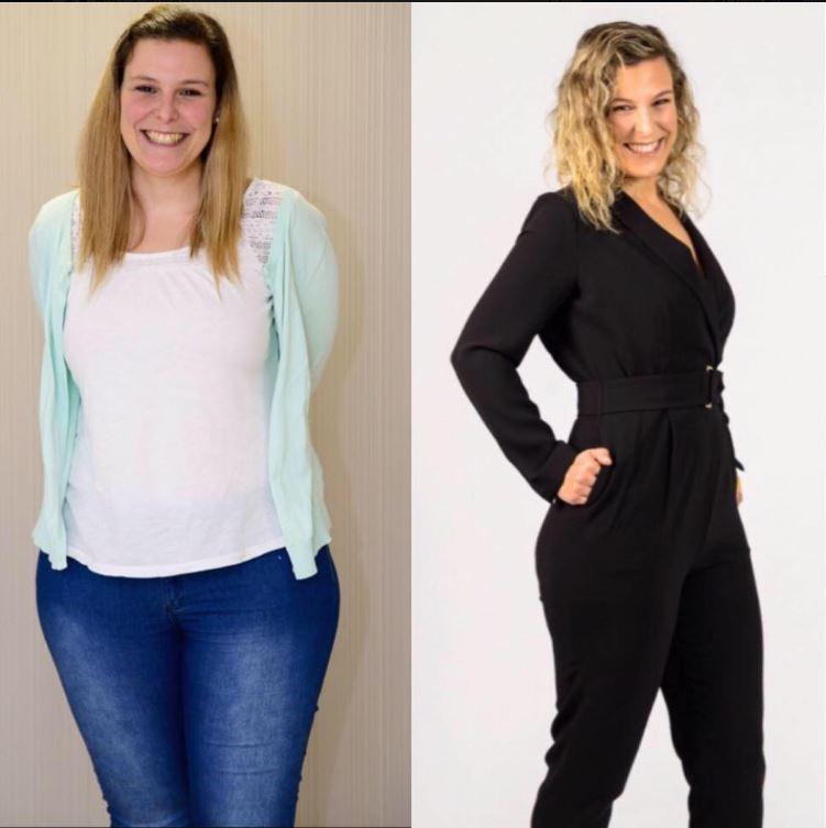 Carla Almeida Pronokal antes e depois