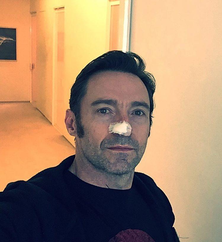 Hugh Jackman cancro de pele