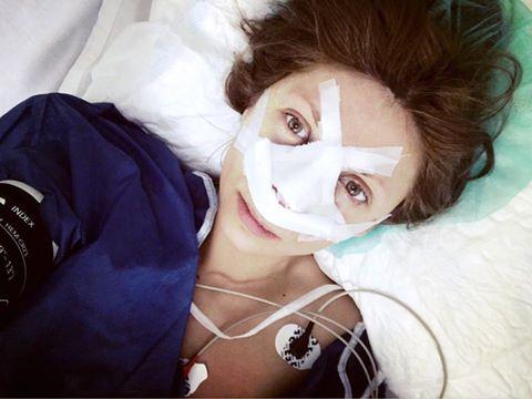 Agnes operação nariz